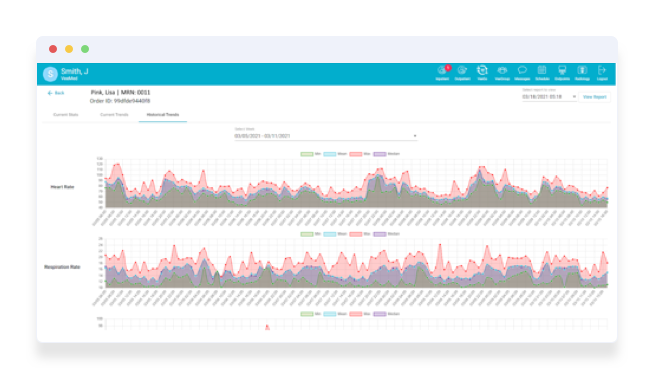 RPM monitoring skin temperature and heart rate